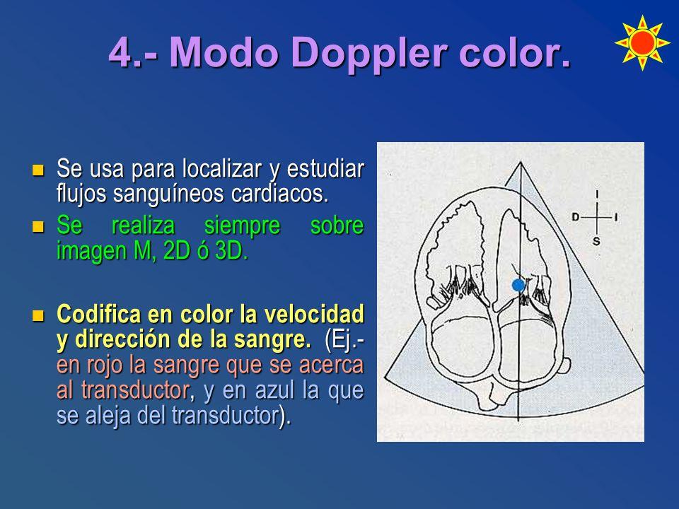 4.- Modo Doppler color. Se usa para localizar y estudiar flujos sanguíneos cardiacos. Se usa para localizar y estudiar flujos sanguíneos cardiacos. Se