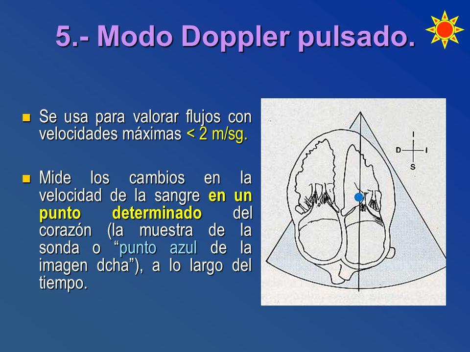 5.- Modo Doppler pulsado. Se usa para valorar flujos con velocidades máximas < 2 m/sg. Se usa para valorar flujos con velocidades máximas < 2 m/sg. Mi