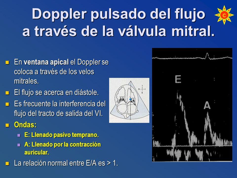 En ventana apical el Doppler se coloca a través de los velos mitrales. En ventana apical el Doppler se coloca a través de los velos mitrales. El flujo