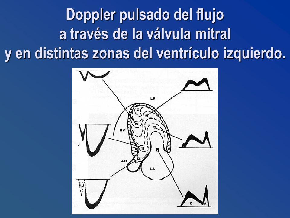 Doppler pulsado del flujo a través de la válvula mitral y en distintas zonas del ventrículo izquierdo.