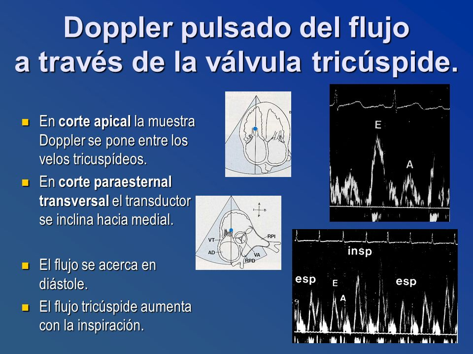 En corte apical la muestra Doppler se pone entre los velos tricuspídeos. En corte apical la muestra Doppler se pone entre los velos tricuspídeos. En c