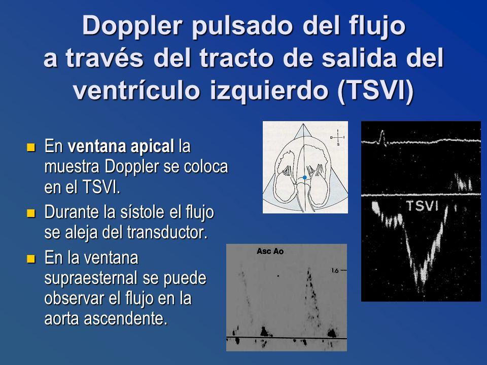 En ventana apical la muestra Doppler se coloca en el TSVI. En ventana apical la muestra Doppler se coloca en el TSVI. Durante la sístole el flujo se a