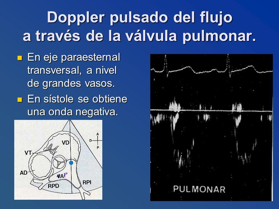 Doppler pulsado del flujo a través de la válvula pulmonar. En eje paraesternal transversal, a nivel de grandes vasos. En eje paraesternal transversal,