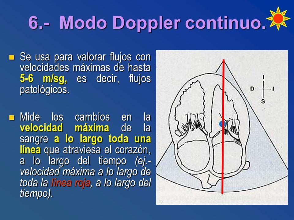 6.- Modo Doppler continuo. Se usa para valorar flujos con velocidades máximas de hasta 5-6 m/sg, es decir, flujos patológicos. Se usa para valorar flu