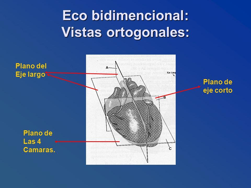 Eco bidimencional: Vistas ortogonales: Plano de eje corto Plano del Eje largo Plano de Las 4 Camaras.