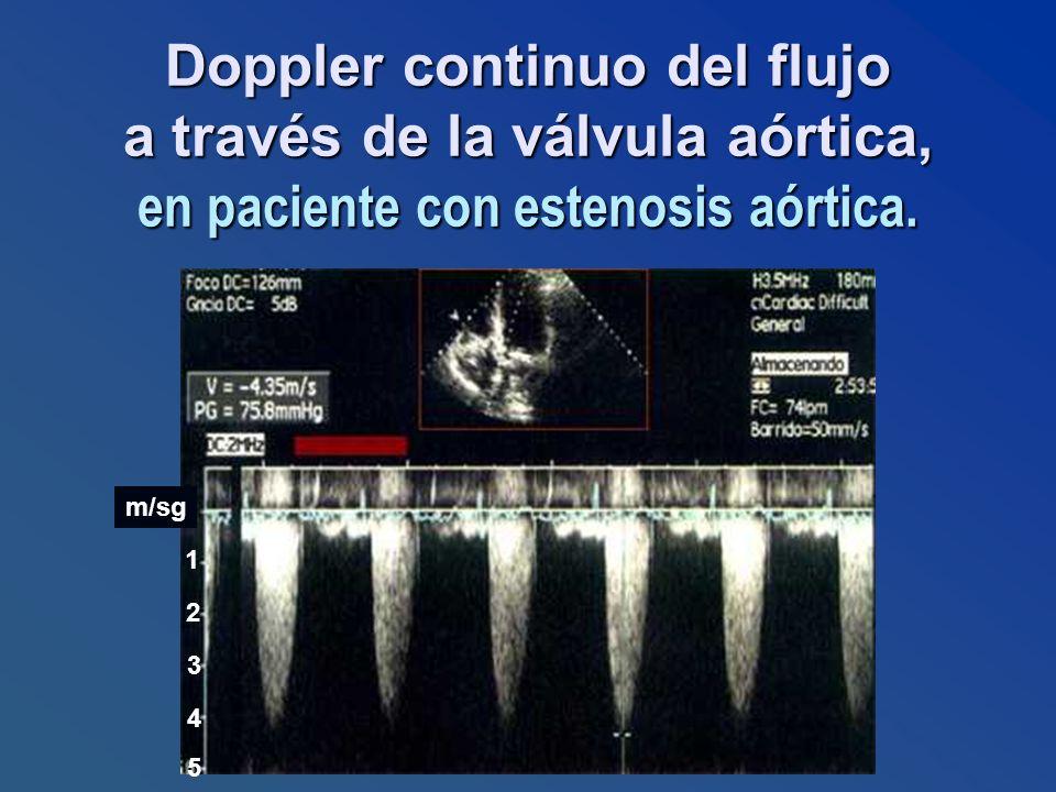 Doppler continuo del flujo a través de la válvula aórtica, en paciente con estenosis aórtica. 1 2 3 4 5 m/sg