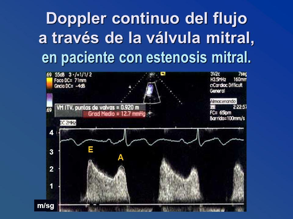 Doppler continuo del flujo a través de la válvula mitral, en paciente con estenosis mitral. m/sg 1 2 3 4 E A