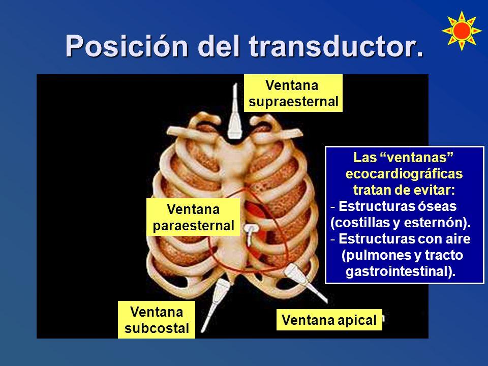 Posición del transductor. Ventana supraesternal Ventana apical Ventana subcostal Ventana paraesternal Las ventanas ecocardiográficas tratan de evitar: