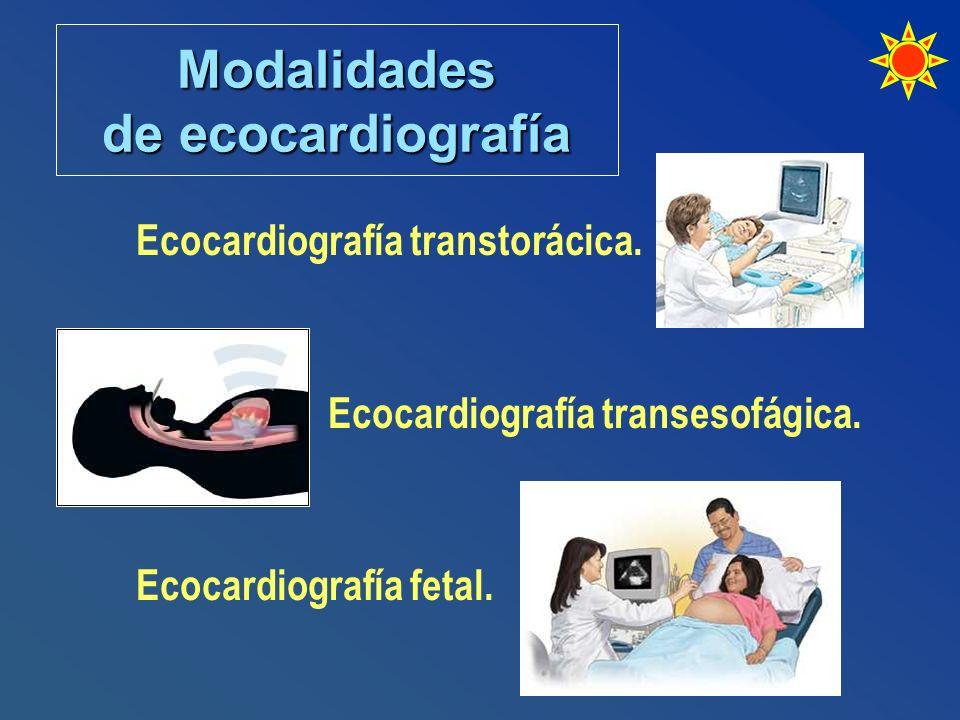 Modalidades de ecocardiografía Ecocardiografía transtorácica. Ecocardiografía transesofágica. Ecocardiografía fetal.