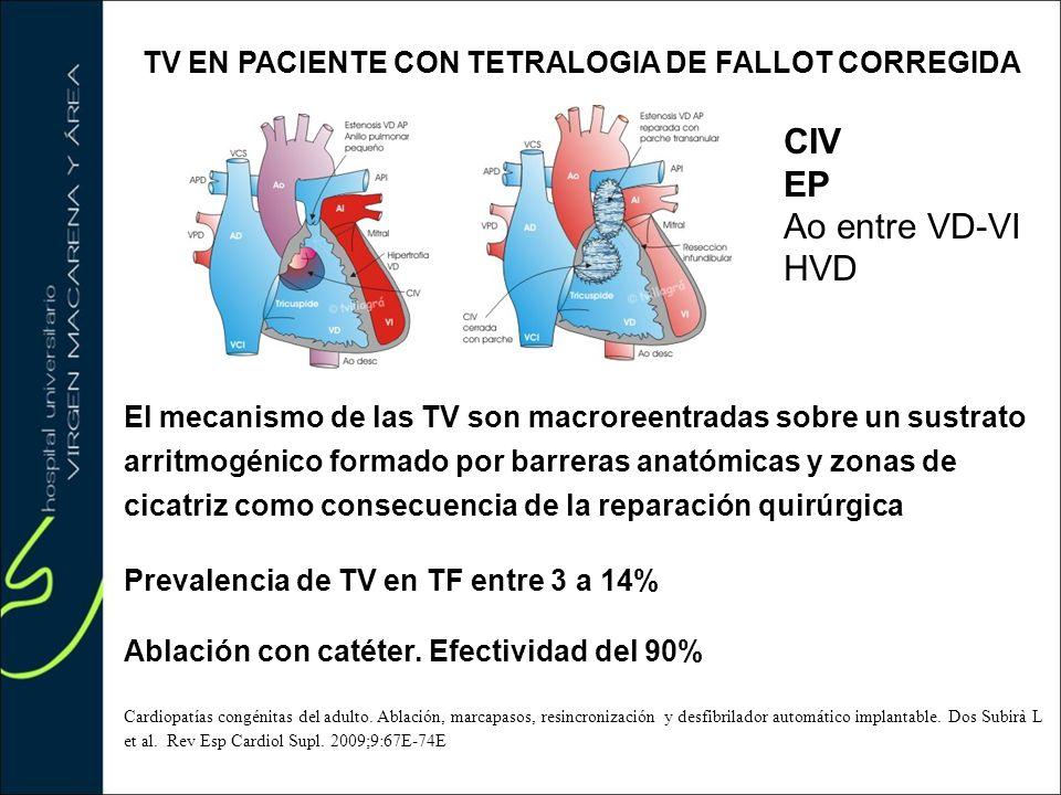 TV EN PACIENTE CON TETRALOGIA DE FALLOT CORREGIDA El mecanismo de las TV son macroreentradas sobre un sustrato arritmogénico formado por barreras anat
