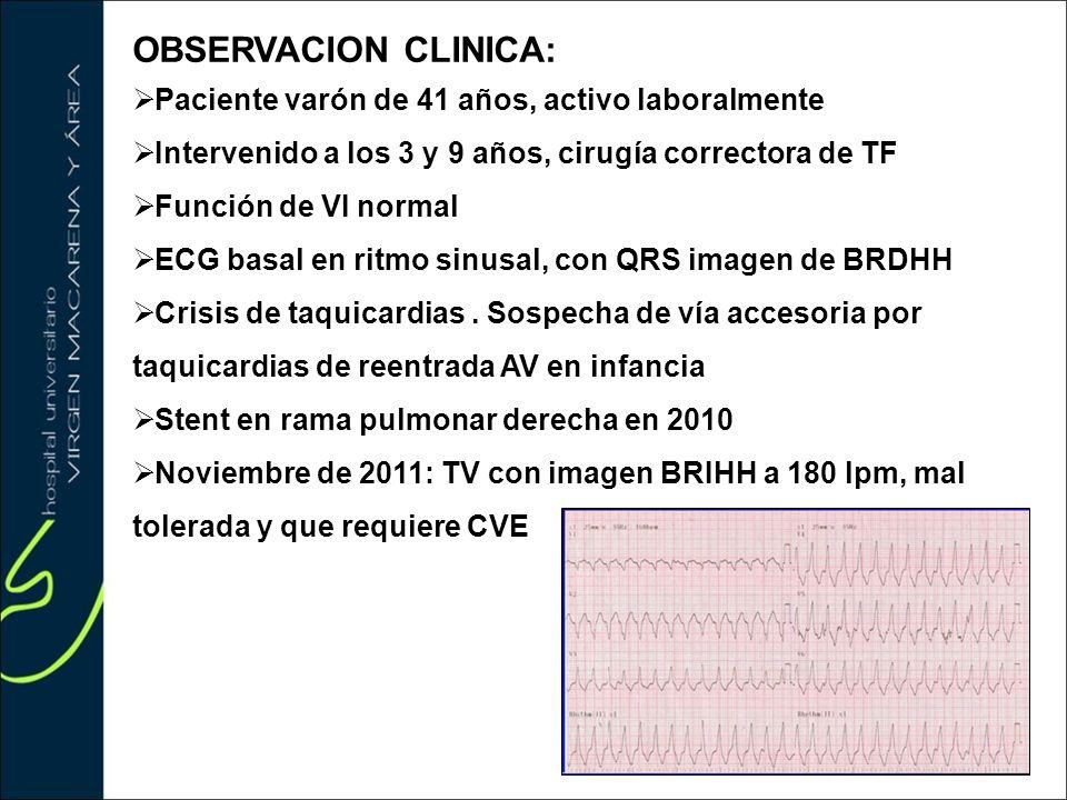 OBSERVACION CLINICA: Paciente varón de 41 años, activo laboralmente Intervenido a los 3 y 9 años, cirugía correctora de TF Función de VI normal ECG ba