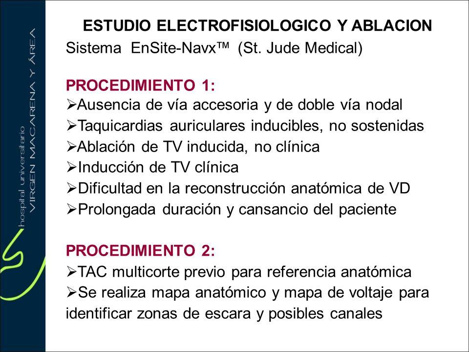ESTUDIO ELECTROFISIOLOGICO Y ABLACION Sistema EnSite-Navx (St. Jude Medical) PROCEDIMIENTO 1: Ausencia de vía accesoria y de doble vía nodal Taquicard