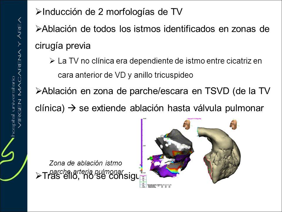 Inducción de 2 morfologías de TV Ablación de todos los istmos identificados en zonas de cirugía previa La TV no clínica era dependiente de istmo entre