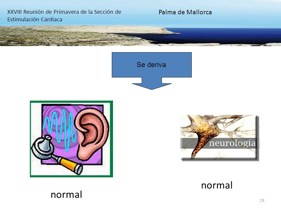 19 normal XXVIII Reunión de Primavera de la Sección de Estimulación Cardiaca Palma de Mallorca Se deriva
