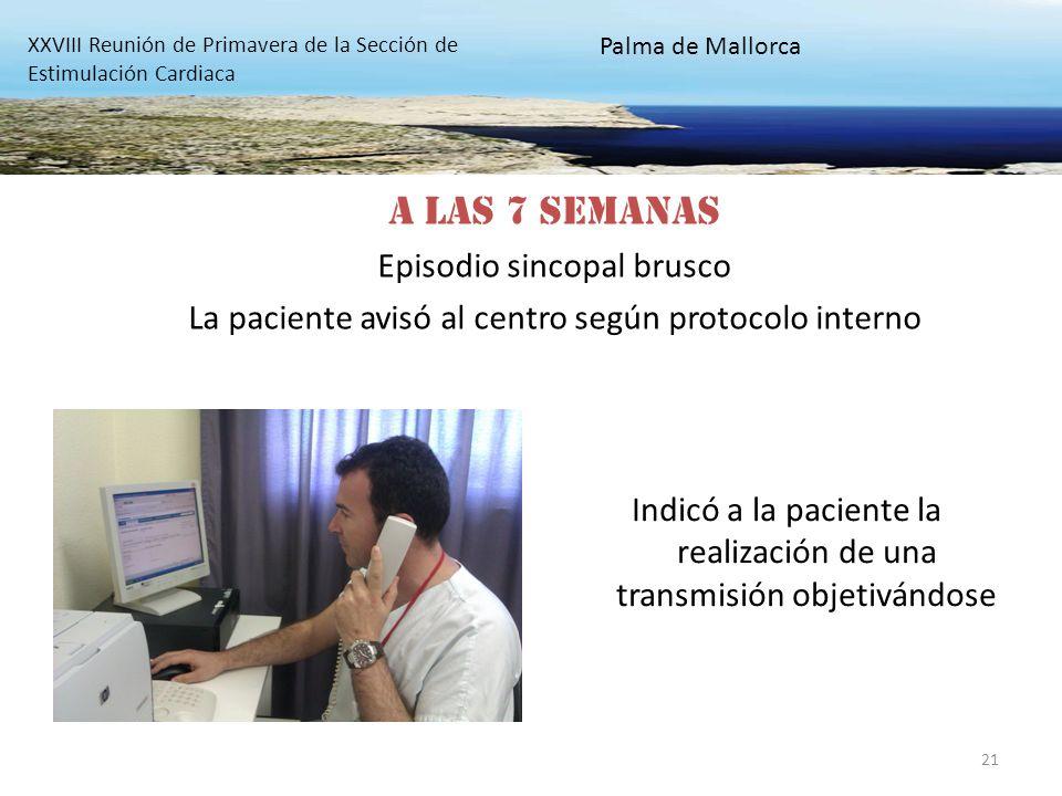 21 Indicó a la paciente la realización de una transmisión objetivándose XXVIII Reunión de Primavera de la Sección de Estimulación Cardiaca Palma de Ma