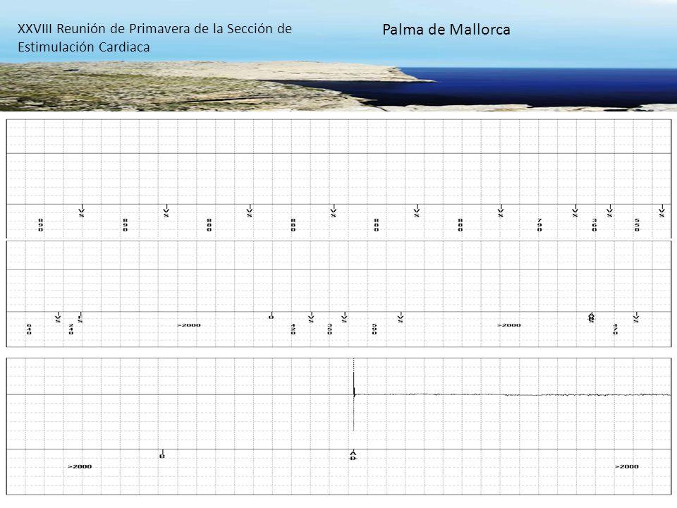 22 XXVIII Reunión de Primavera de la Sección de Estimulación Cardiaca Palma de Mallorca