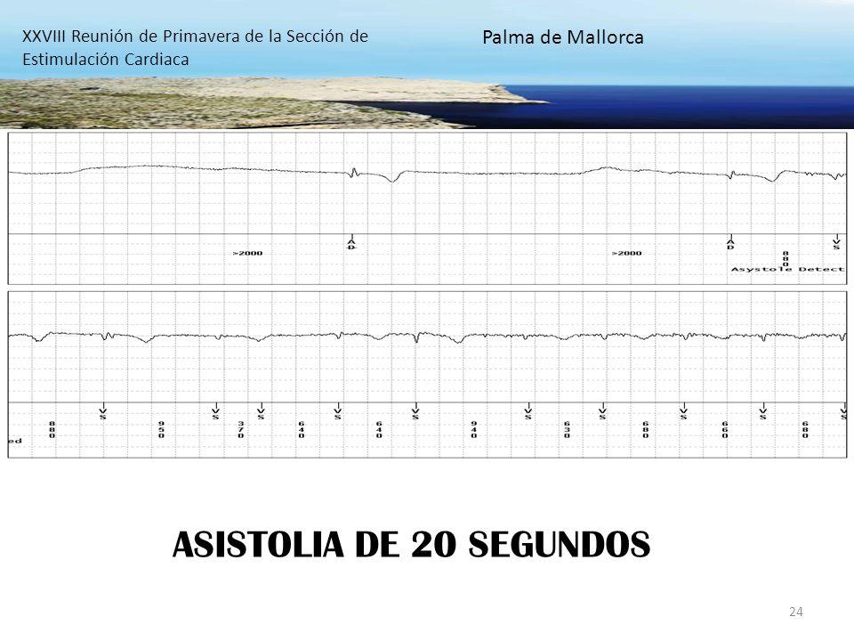 24 ASISTOLIA DE 20 SEGUNDOS XXVIII Reunión de Primavera de la Sección de Estimulación Cardiaca Palma de Mallorca