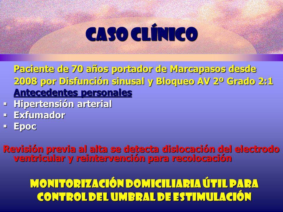 Caso clínico Paciente de 70 años portador de Marcapasos desde 2008 por Disfunción sinusal y Bloqueo AV 2º Grado 2:1 Antecedentes personales Hipertensi