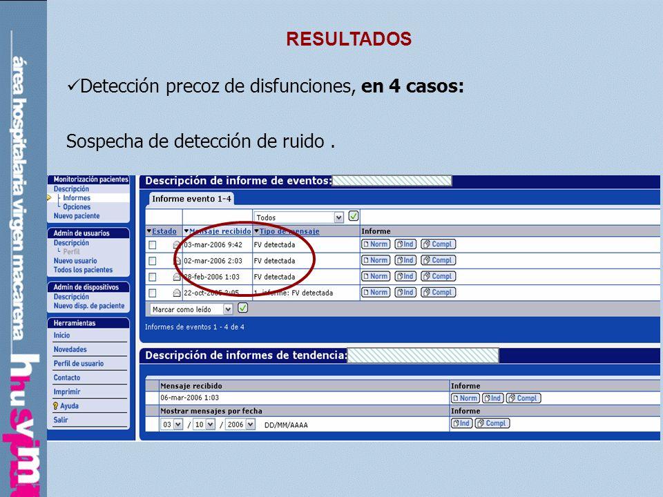 RESULTADOS Detección precoz de disfunciones, en 4 casos: Sospecha de detección de ruido.