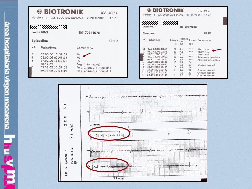 Descenso de impedancia de estimulación y detección de ruido