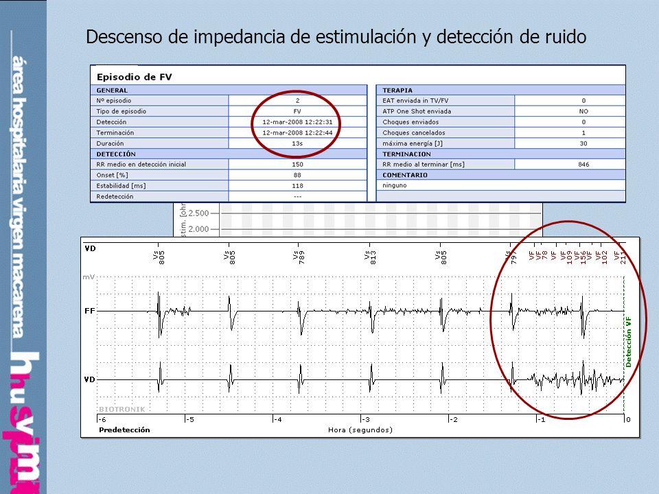 Caída en amplitud de la detección ventricular. Dislocación de electrodo.