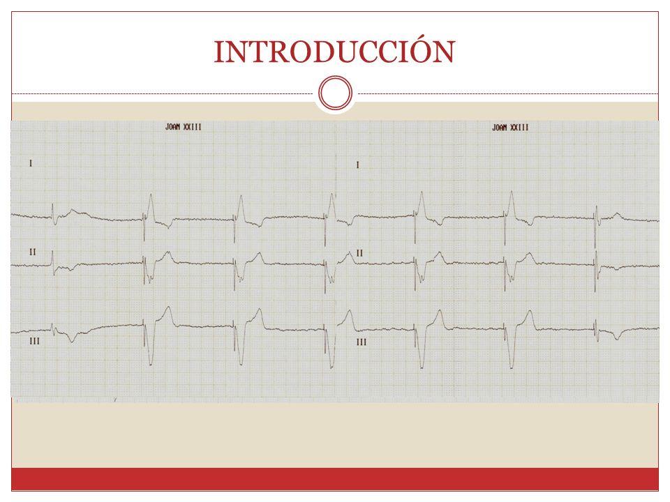 Escala CHADS2 Insuficiencia cardiacaC1 punto Hipertensión arterialH1 punto Edad mayor de 75 añosA1 punto DiabetesD1 punto Embolia previaS22 puntos Tratamiento recomendado: 2 puntos ACO.