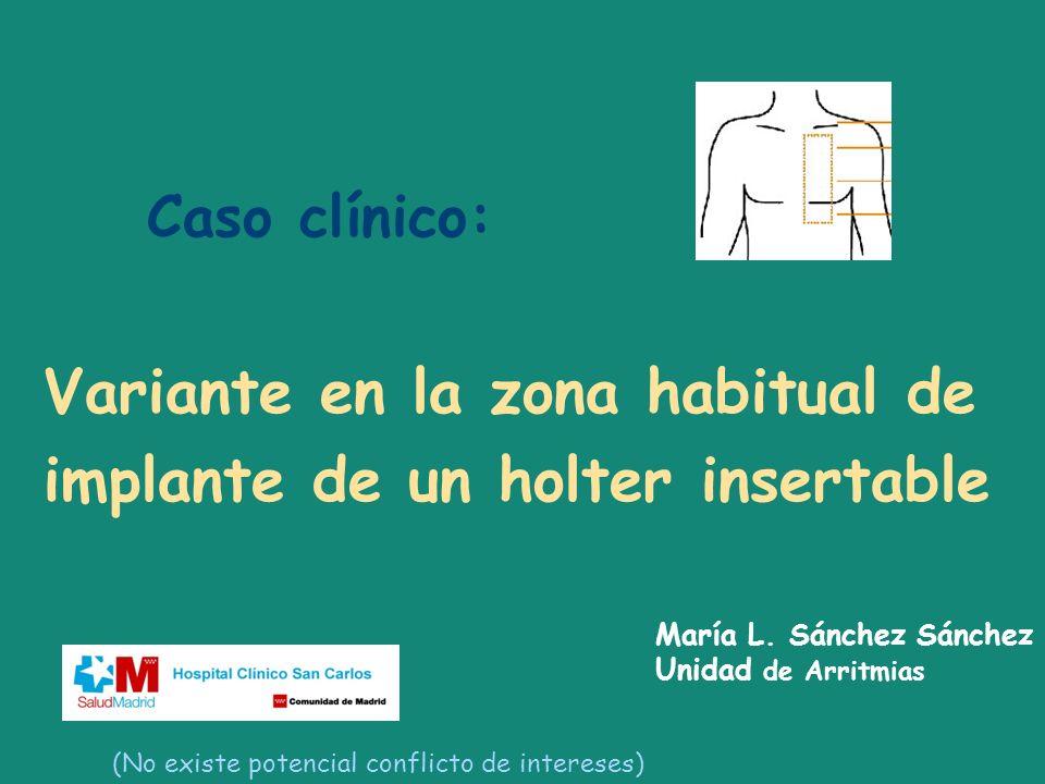 Caso clínico: Variante en la zona habitual de implante de un holter insertable María L. Sánchez Sánchez Unidad de Arritmias (No existe potencial confl