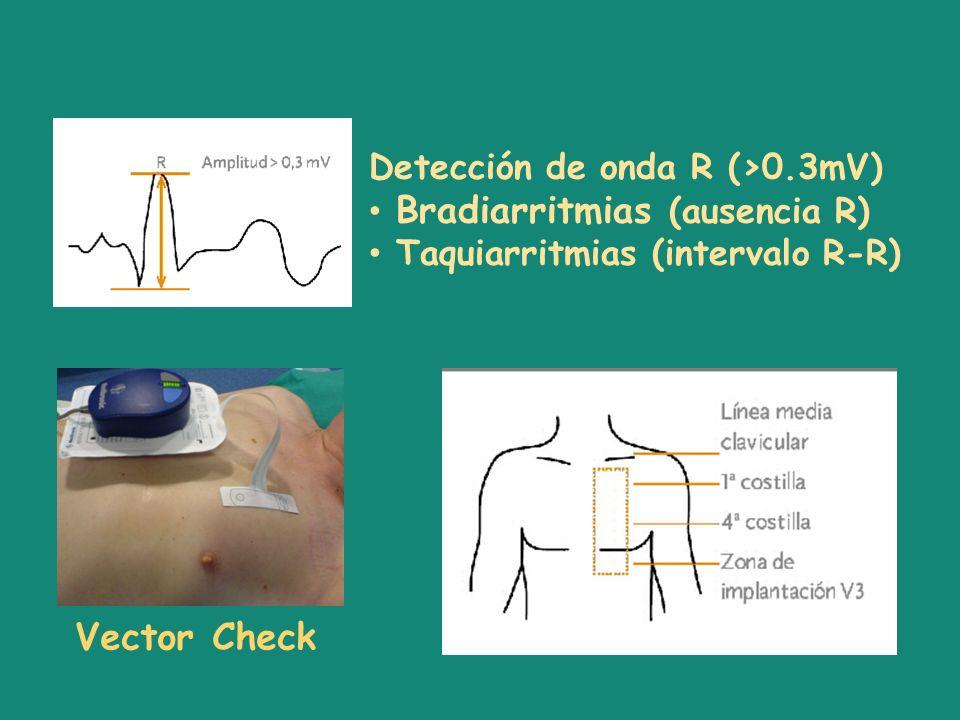 Detección de onda R (>0.3mV) Bradiarritmias (ausencia R) Taquiarritmias (intervalo R-R) Vector Check