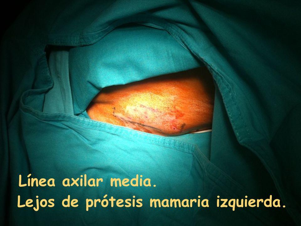 Lejos de prótesis mamaria izquierda. Línea axilar media.