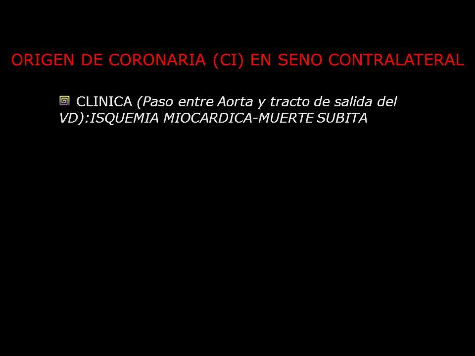 ORIGEN DE CORONARIA (CI) EN SENO CONTRALATERAL CLINICA (Paso entre Aorta y tracto de salida del VD):ISQUEMIA MIOCARDICA-MUERTE SUBITA