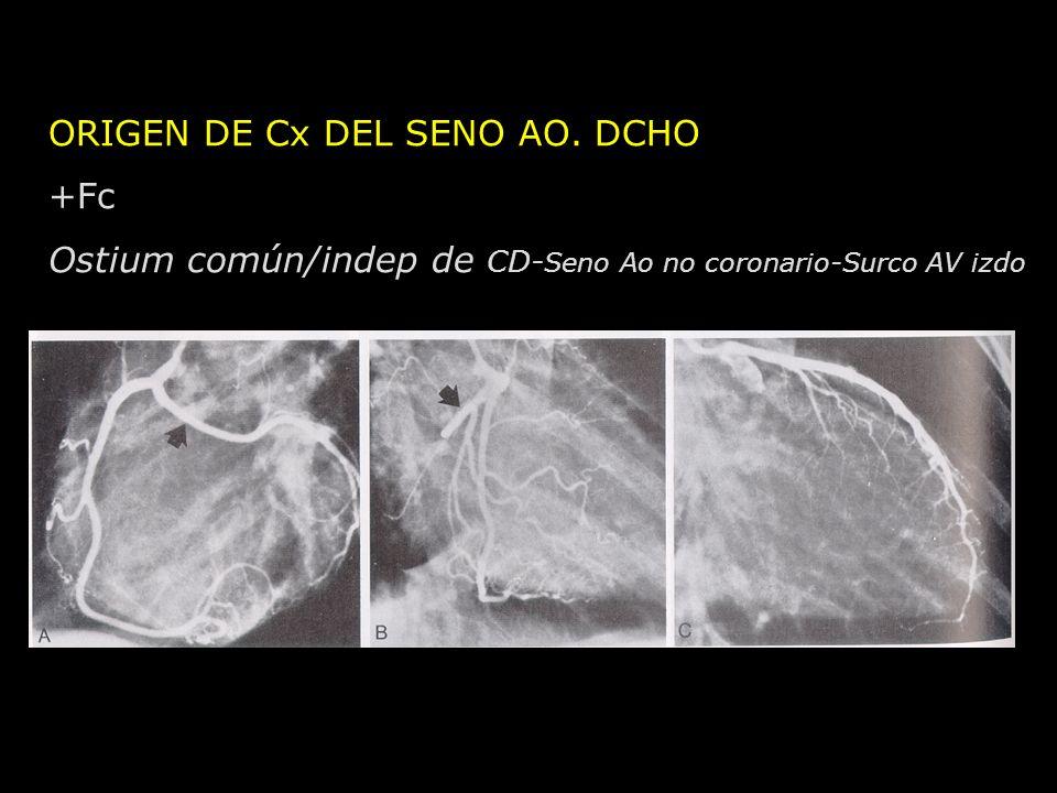 ORIGEN DE Cx DEL SENO AO. DCHO +Fc Ostium común/indep de CD- Seno Ao no coronario-Surco AV izdo
