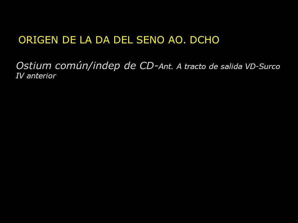 ORIGEN DE LA DA DEL SENO AO. DCHO Ostium común/indep de CD- Ant. A tracto de salida VD-Surco IV anterior