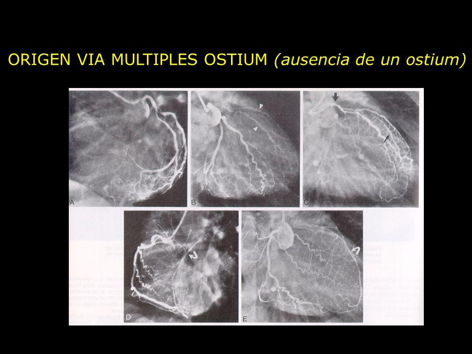 ORIGEN VIA MULTIPLES OSTIUM (ausencia de un ostium)