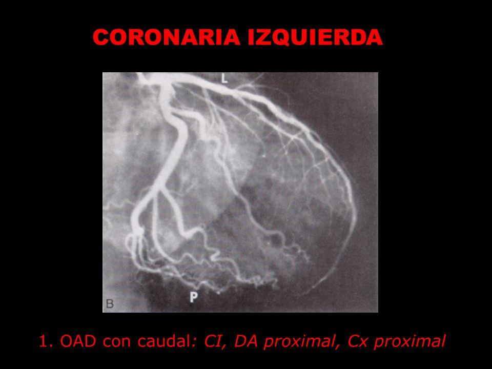 1. OAD con caudal: CI, DA proximal, Cx proximal CORONARIA IZQUIERDA