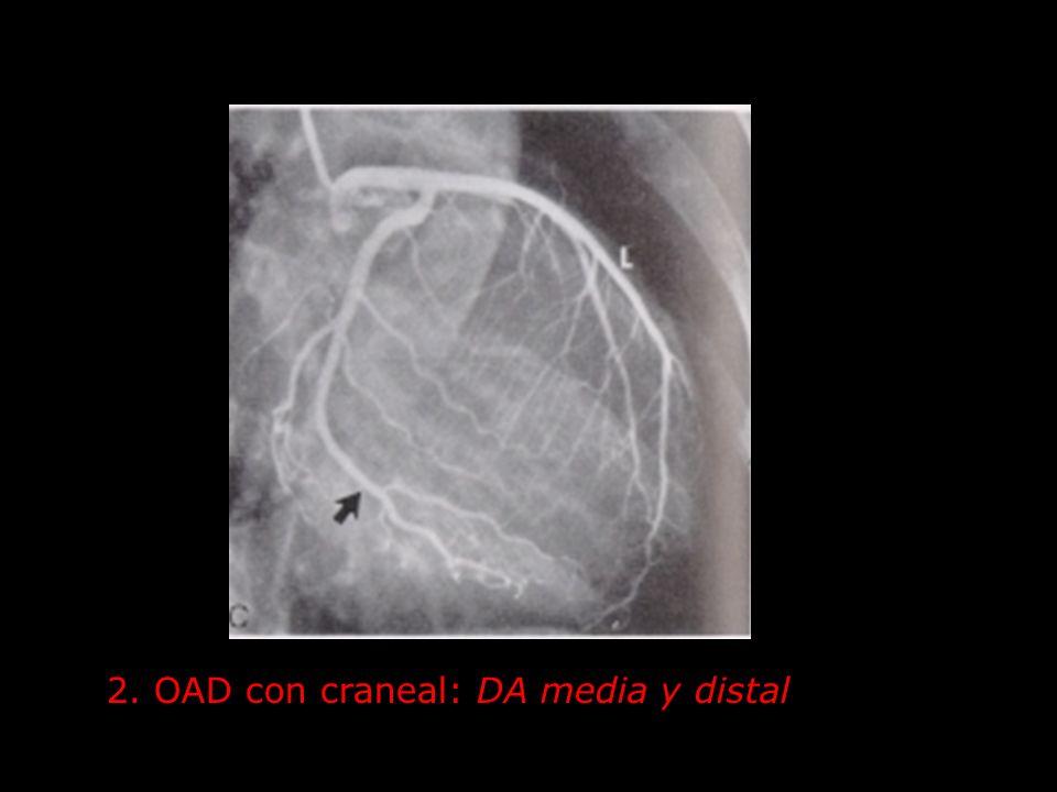 2. OAD con craneal: DA media y distal