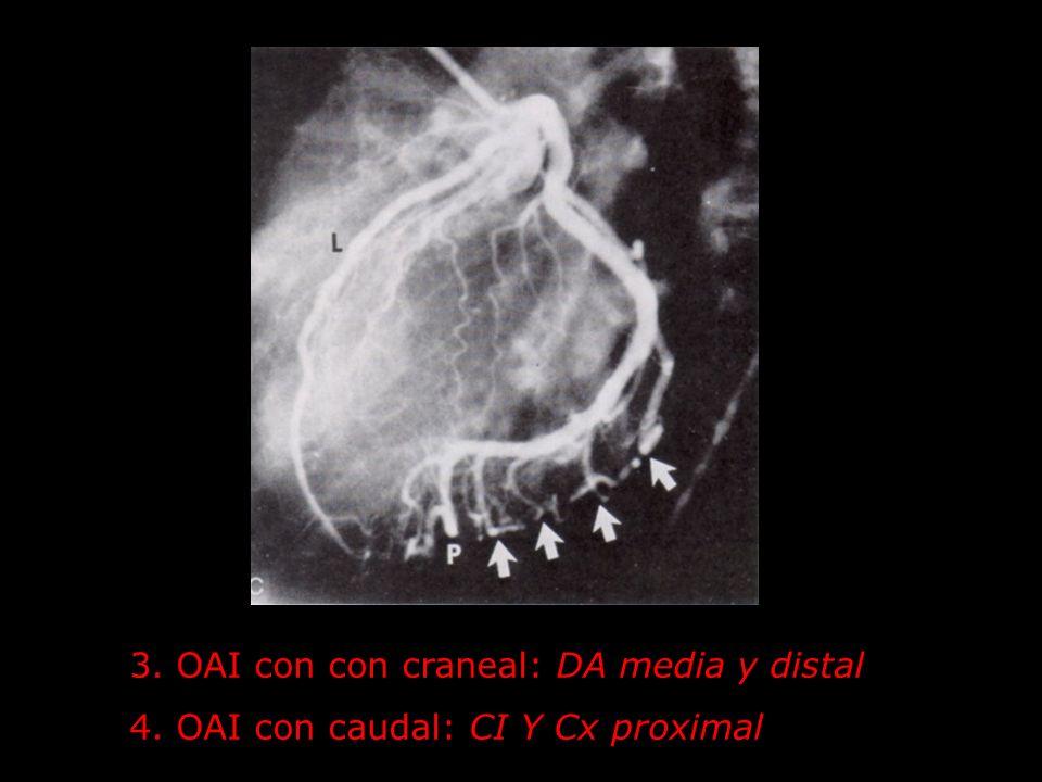 3. OAI con con craneal: DA media y distal 4. OAI con caudal: CI Y Cx proximal