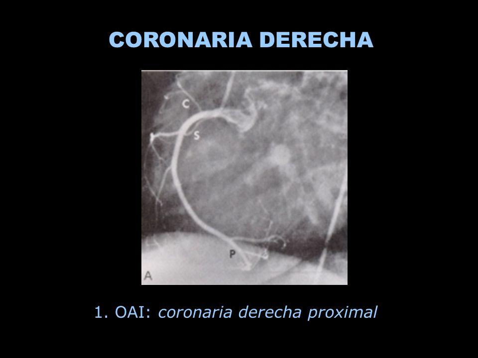 1. OAI: coronaria derecha proximal CORONARIA DERECHA