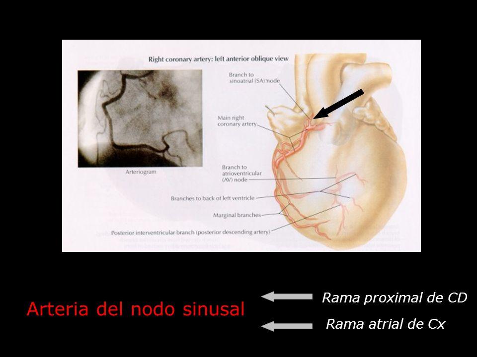 Arteria del nodo sinusal Rama proximal de CD Rama atrial de Cx
