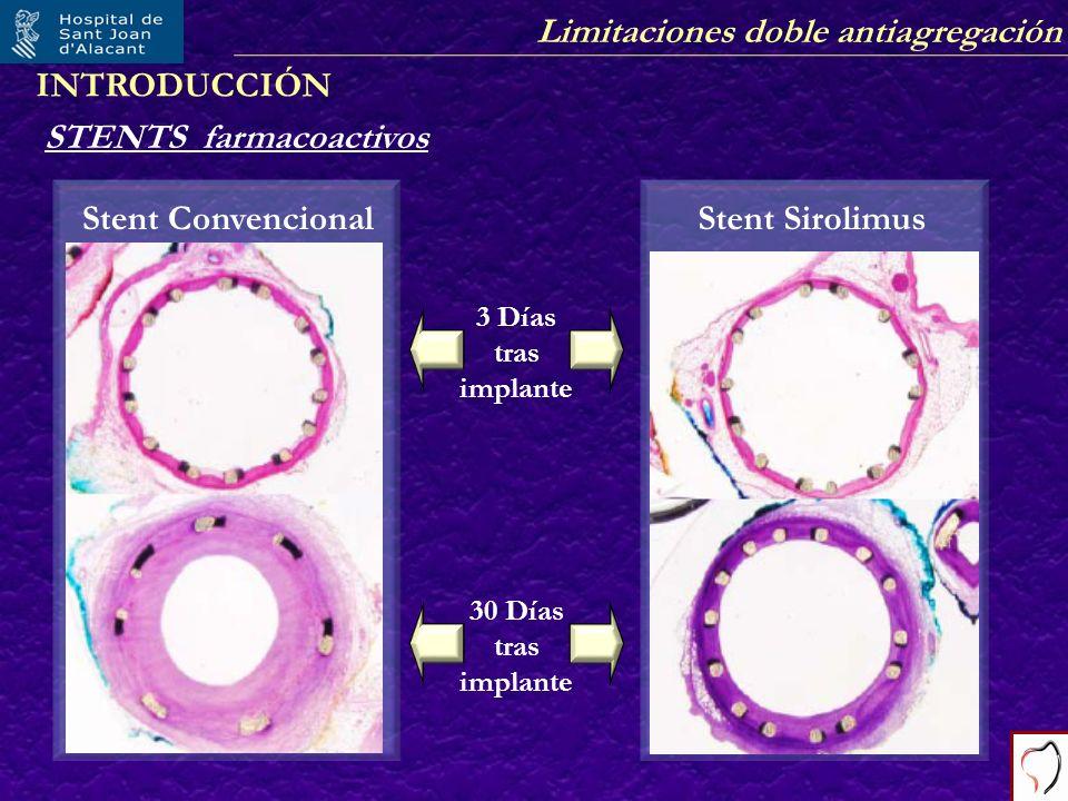 Limitaciones doble antiagregación Stent Sirolimus STENTS farmacoactivos 3 Días tras implante 30 Días tras implante Stent Convencional INTRODUCCIÓN