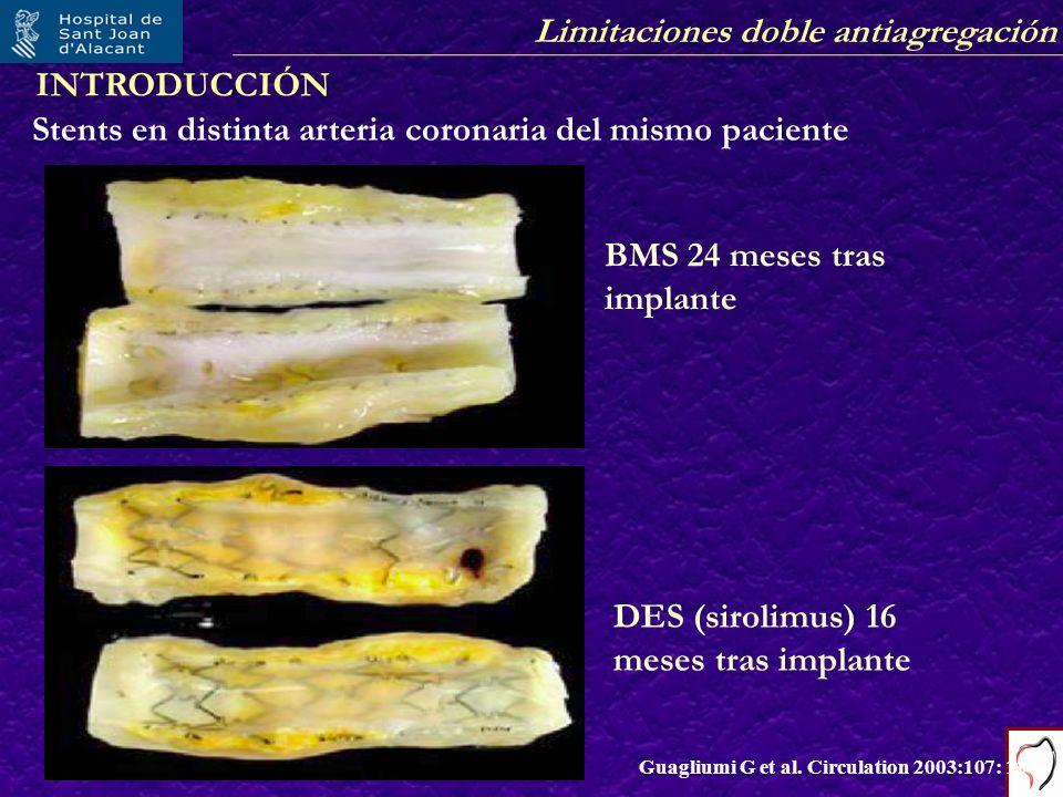 Limitaciones doble antiagregación Stents en distinta arteria coronaria del mismo paciente Guagliumi G et al. Circulation 2003:107: 1340 BMS 24 meses t