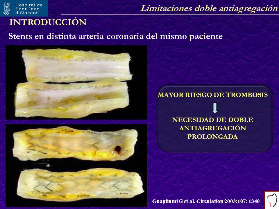 Limitaciones doble antiagregación Stents en distinta arteria coronaria del mismo paciente Guagliumi G et al. Circulation 2003:107: 1340 MAYOR RIESGO D