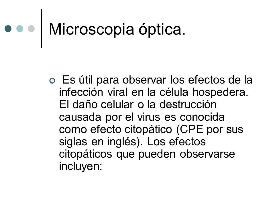 Microscopia óptica. Es útil para observar los efectos de la infección viral en la célula hospedera. El daño celular o la destrucción causada por el vi