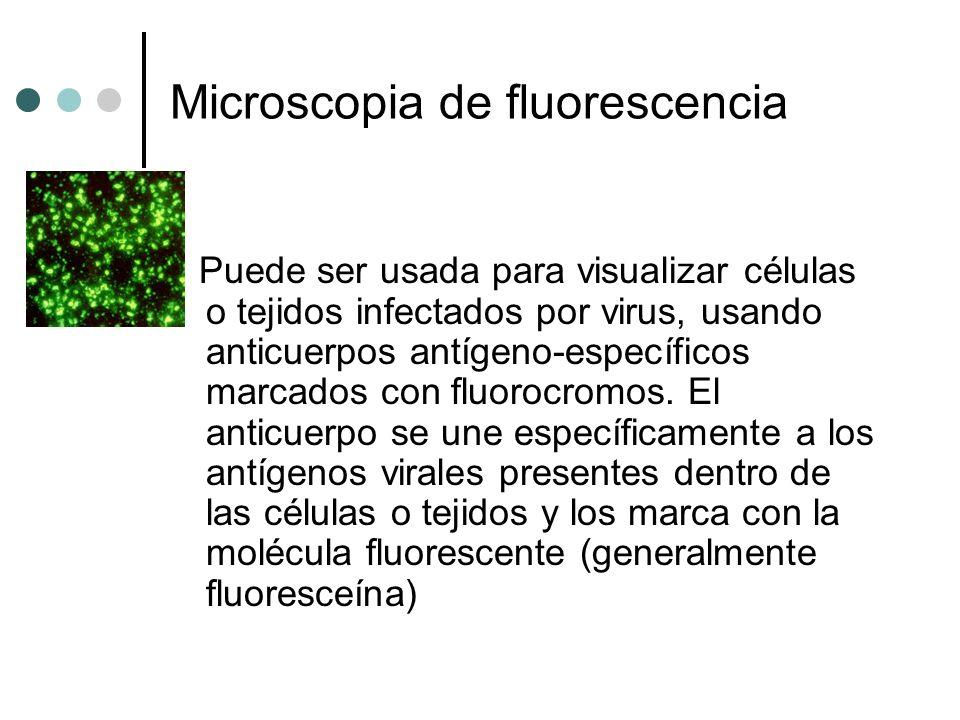 Microscopia de fluorescencia Puede ser usada para visualizar células o tejidos infectados por virus, usando anticuerpos antígeno-específicos marcados