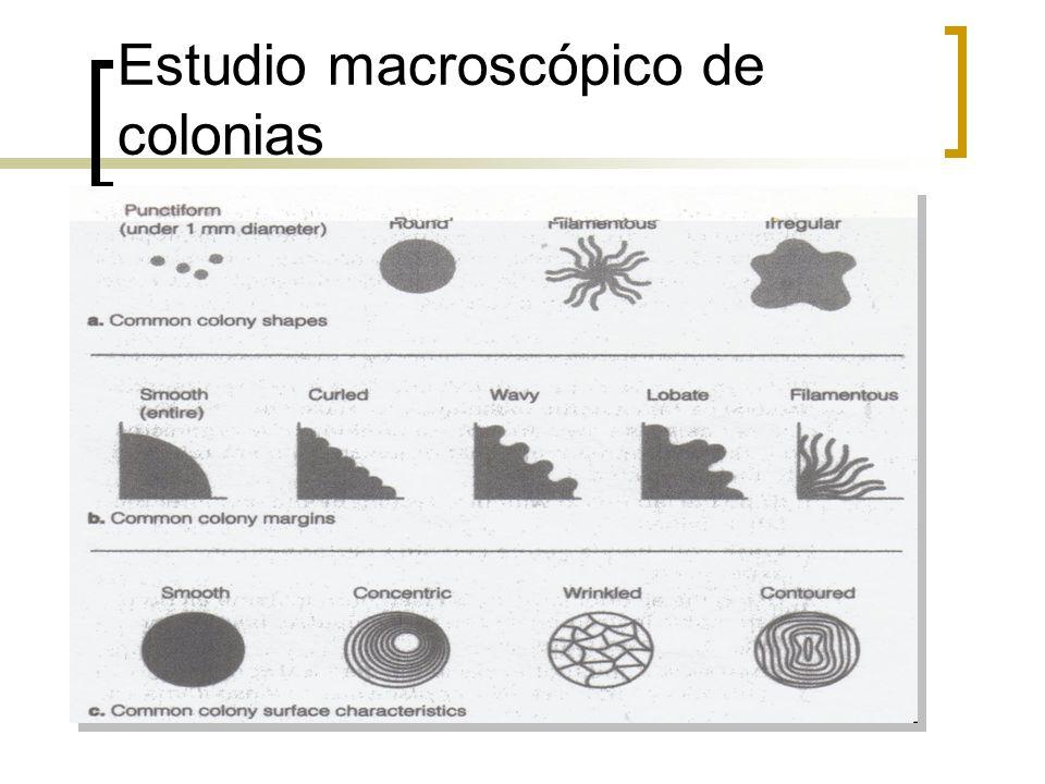Estudio macroscópico de colonias