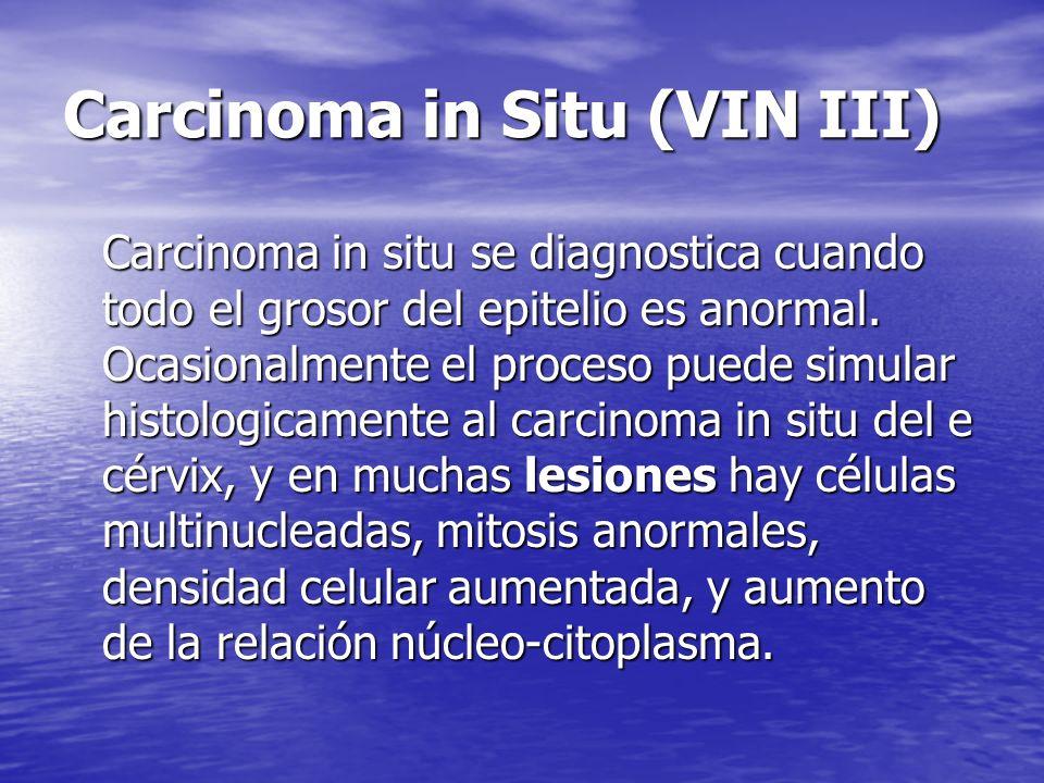 Carcinoma in Situ (VIN III) Carcinoma in situ se diagnostica cuando todo el grosor del epitelio es anormal. Ocasionalmente el proceso puede simular hi