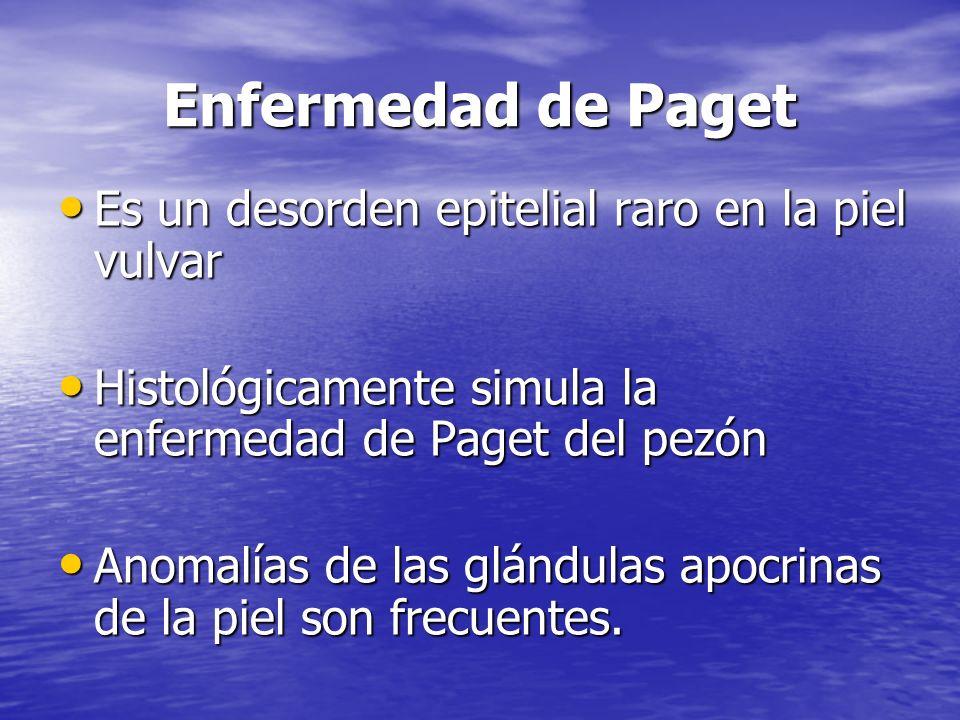 Enfermedad de Paget Es un desorden epitelial raro en la piel vulvar Es un desorden epitelial raro en la piel vulvar Histológicamente simula la enferme