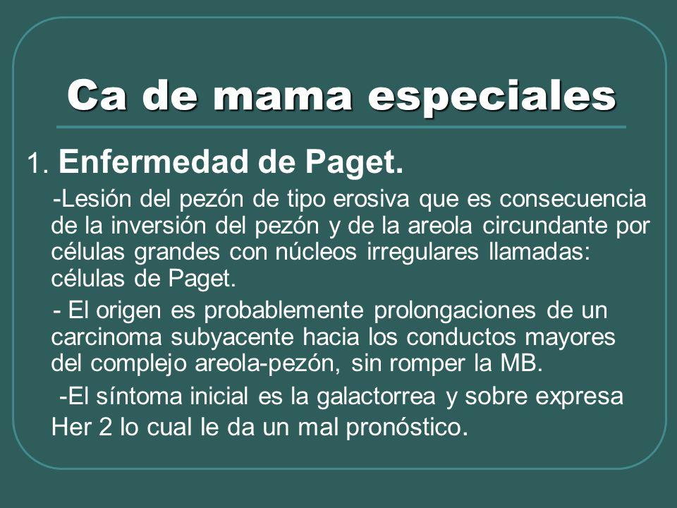 Ca de mama especiales 1. Enfermedad de Paget. -Lesión del pezón de tipo erosiva que es consecuencia de la inversión del pezón y de la areola circundan