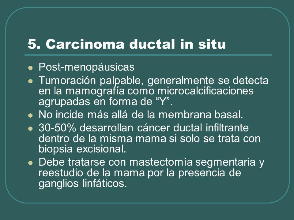 5. Carcinoma ductal in situ Post-menopáusicas Tumoración palpable, generalmente se detecta en la mamografía como microcalcificaciones agrupadas en for