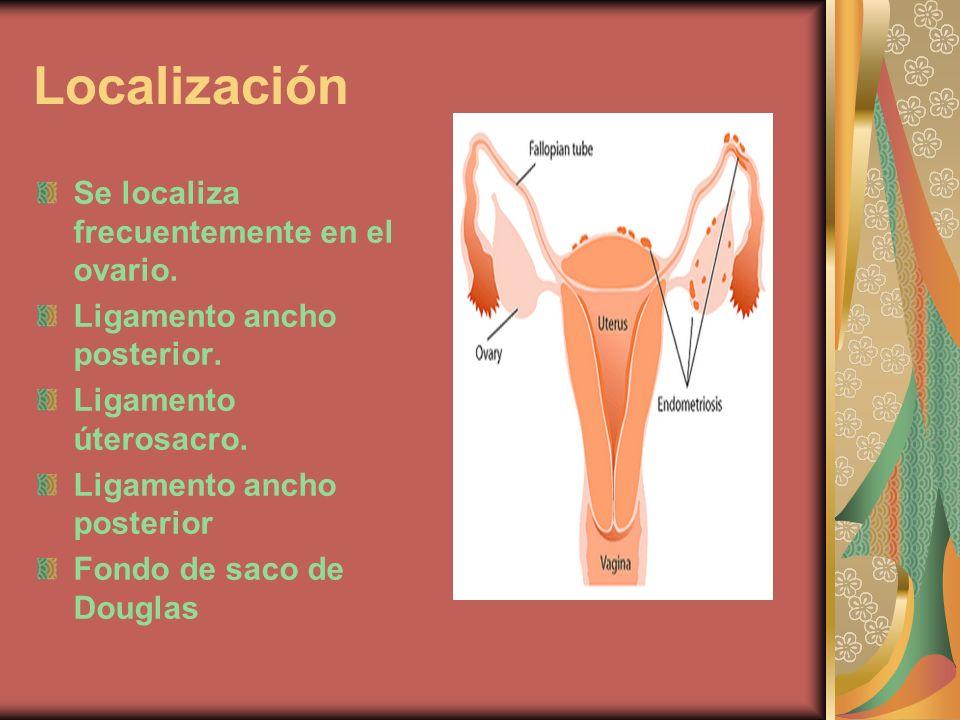 Localización Se localiza frecuentemente en el ovario. Ligamento ancho posterior. Ligamento úterosacro. Ligamento ancho posterior Fondo de saco de Doug