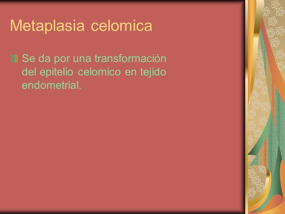 Metaplasia celomica Se da por una transformación del epitelio celomico en tejido endometrial.